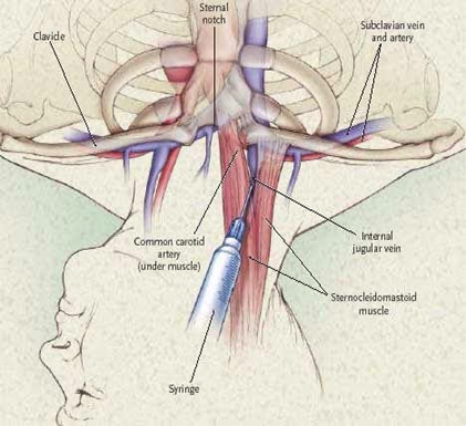 Right internal jugular vein puncture